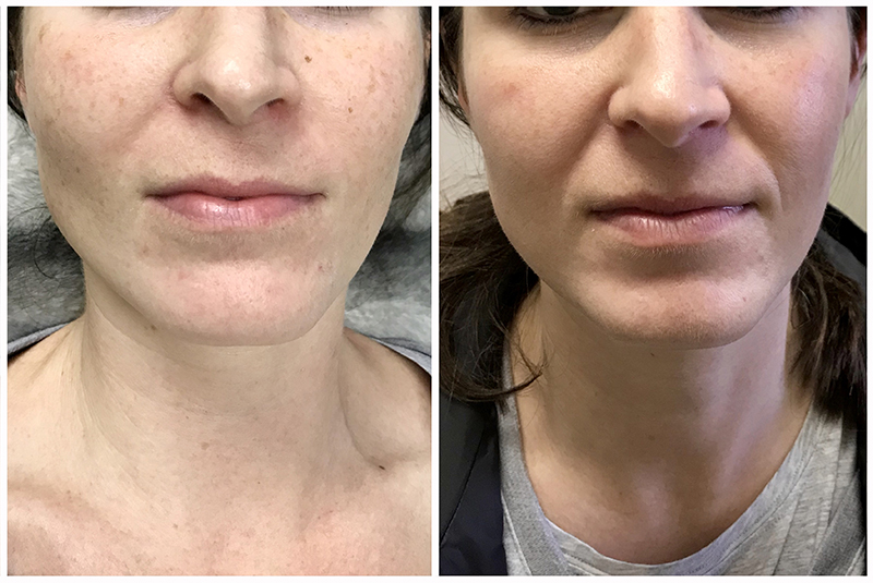 Before After Ipl Laser Treatments