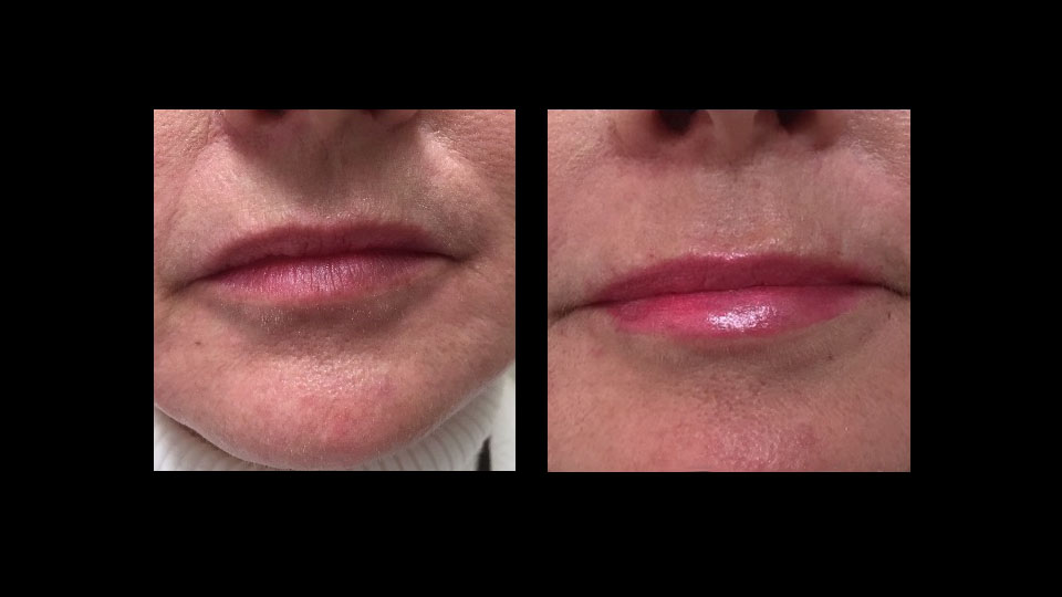 Before and After Juvederm Volbella