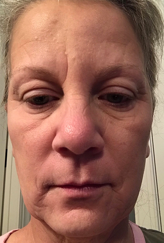 Before & After: Erbium Laser Treatments